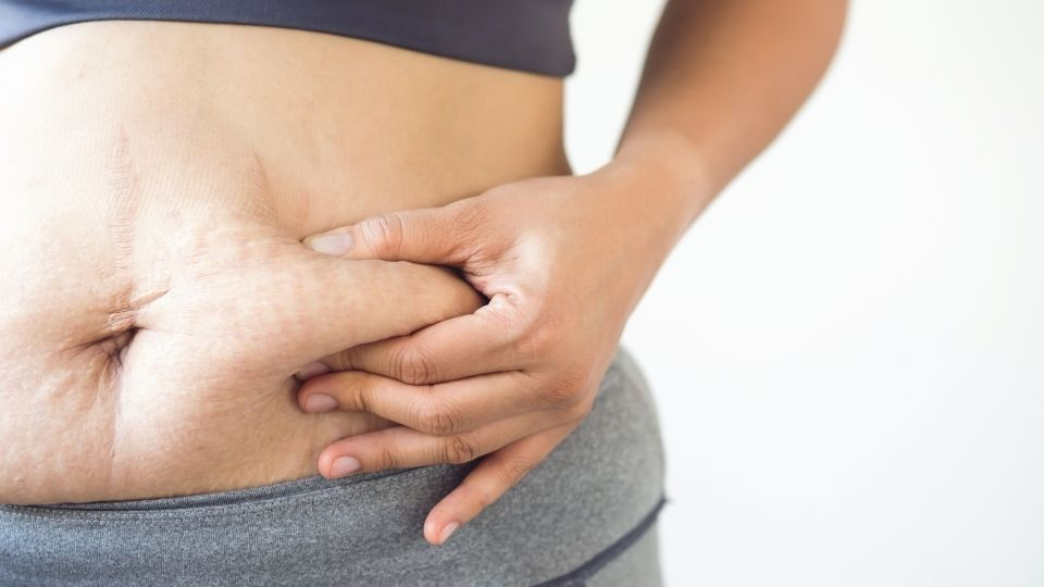 How Can You Quickly Eliminate Scars After Gastric Sleeve Surgery?